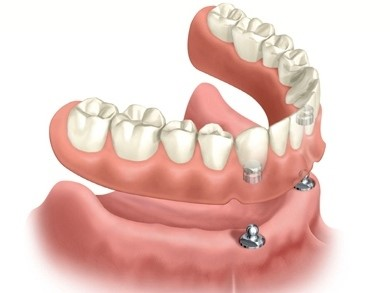 OVERDENTURE – LOWER JAW